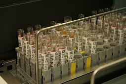 urine lab